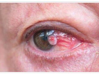 Choroidal melanoma